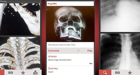 Doctors Tap into Photo Sharing for Healthcare with Figure 1 Mobile App